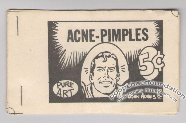 Acne-Pimples