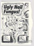 Ugly Nail Fungus!