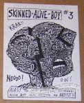 Skinned-Alive Boy #03